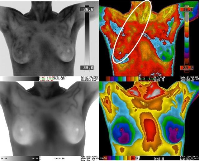 Behandling af brystkræft
