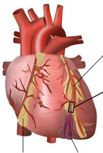 Blodprop i Hjertet