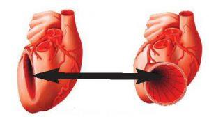 For Højt blodtryk - Blodtryksfaser