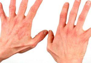 Kroniske eksem modvirkes med Dr Reckeweg R21