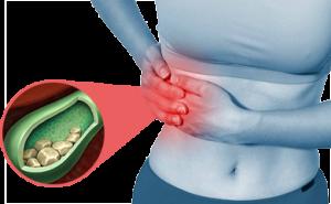 Galdestensdannelse modvirkes af Dr Reckeweg R7