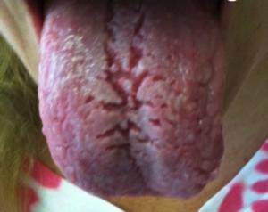 Tungediagnose